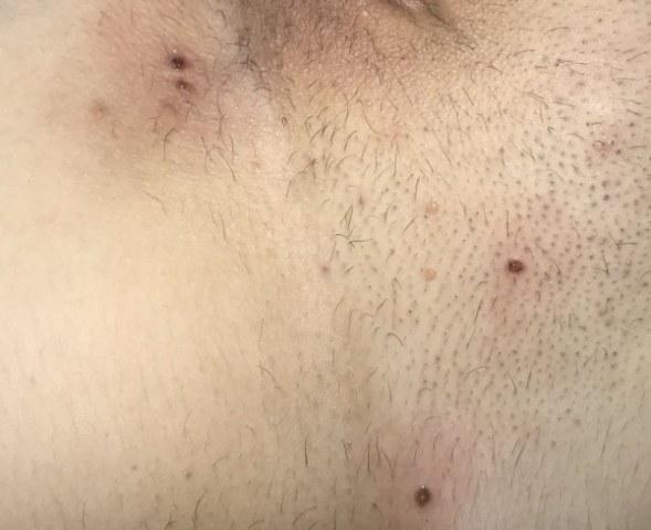 Cause e rimedi per i brufoli vaginali