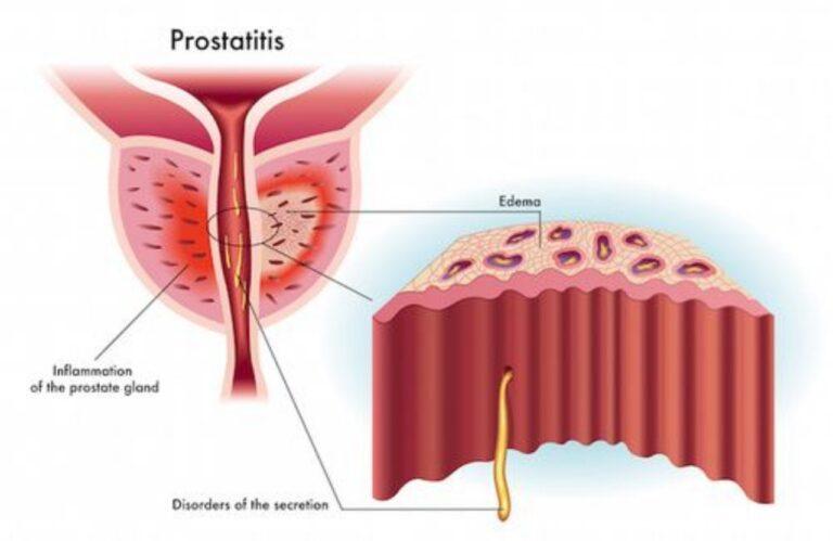 Prostatite, quale alimentazione ? gli alimenti consigliati e quelli da evitare